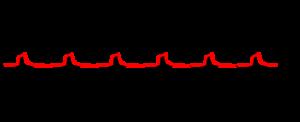 Figura 17 - Sinal depois da retificação (a vermelho) - análise de vibrações e envelope