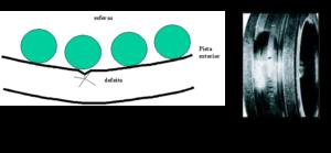Figura 5 – 3ª fase da avaria em rolamentos - A fenda aumenta